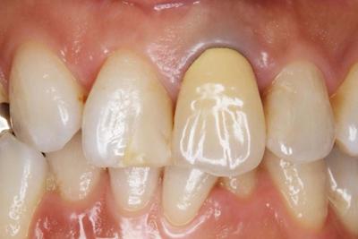 歯ぐきの黒ずみを消す
